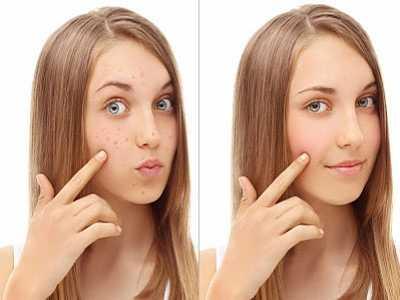 脸部痘痘 如何正确护理青春痘