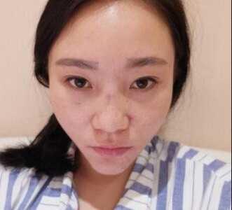 自体脂肪填充隆鼻 前后效果对比图和一个月恢复过程